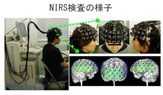 NIRS検査の様子
